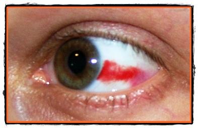 Opticlass Timisoara - Primul ajutor in traumatismele oculare